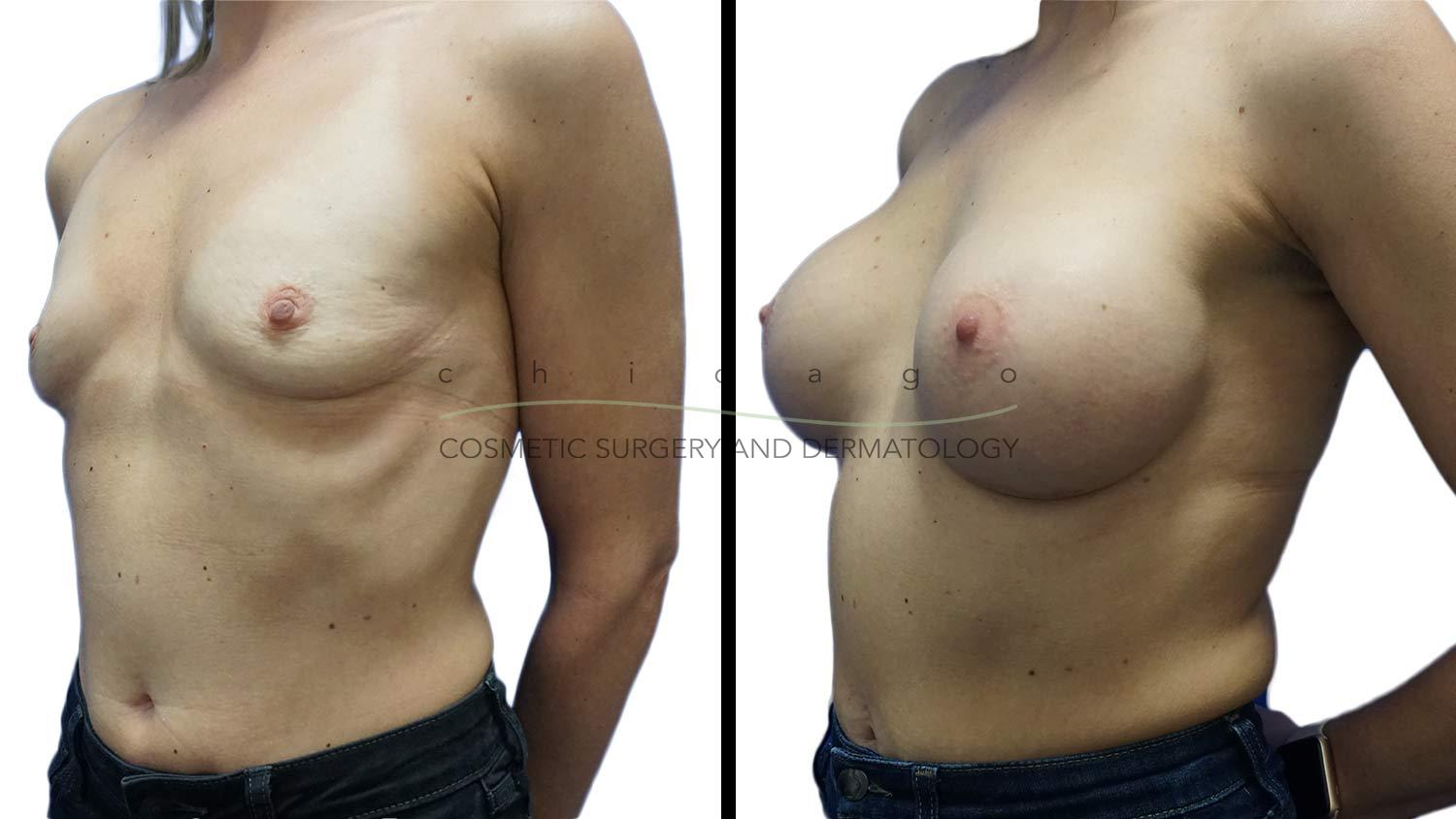 Breast Augmentation by Dr. Niki Christopoulos
