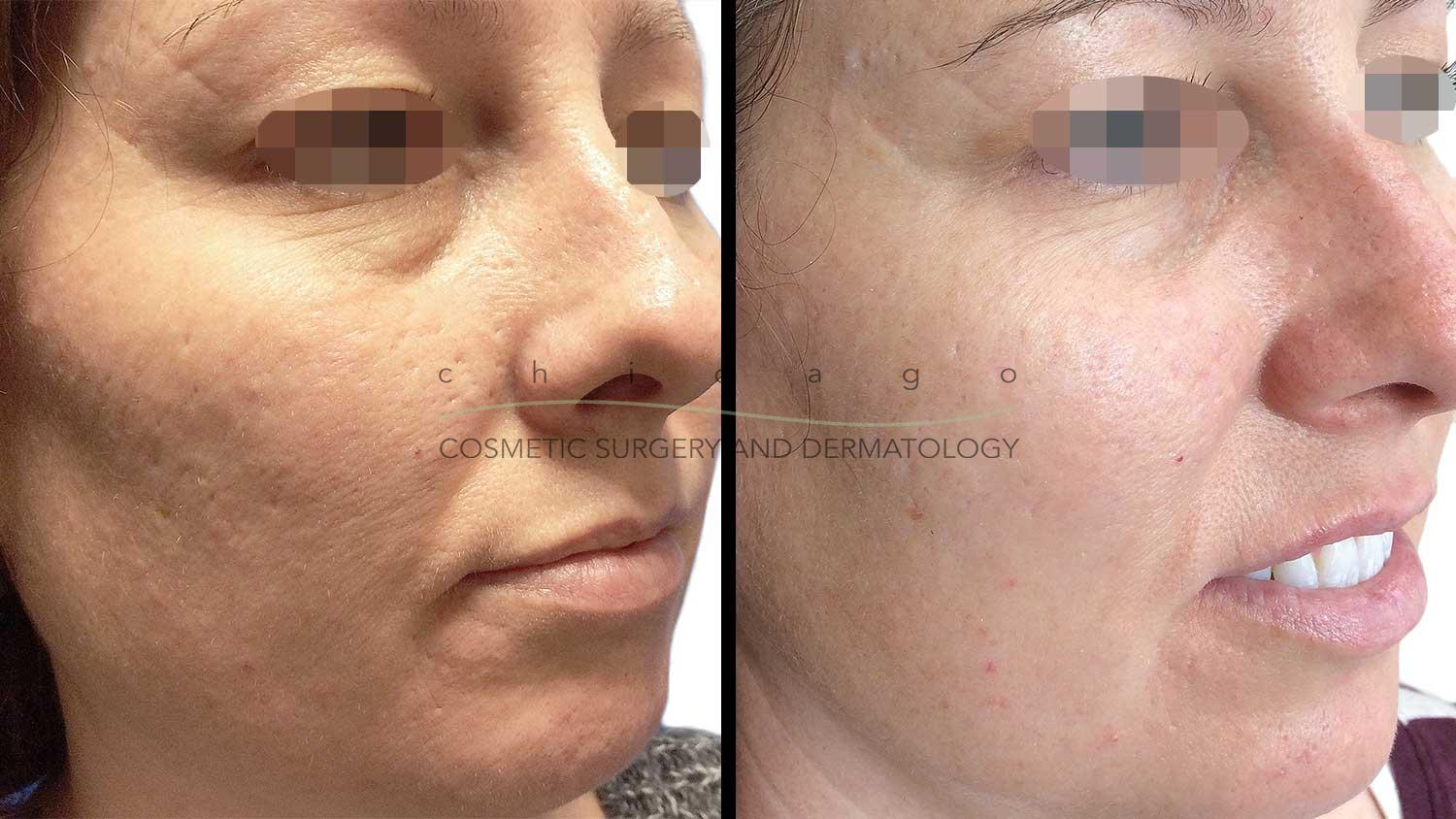 TCA Cross peel before and after
