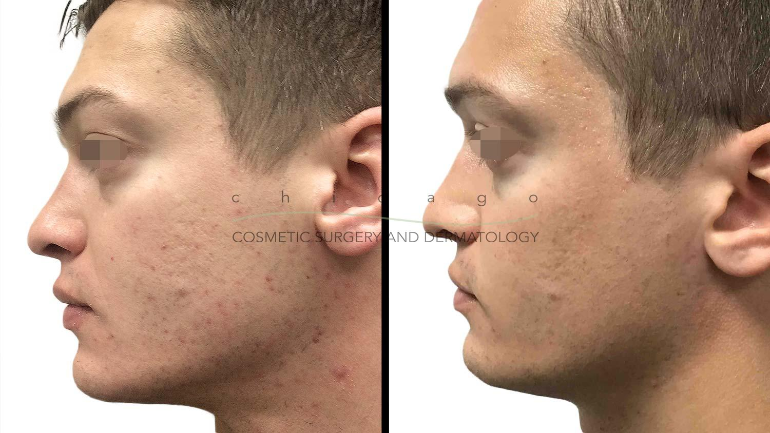 Acne by Dr. Omer Ibrahim