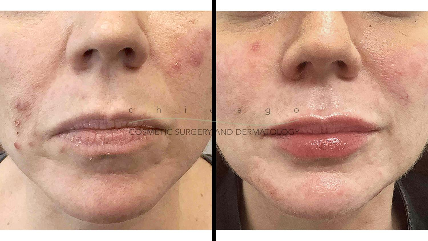 Accutane for acne before and after