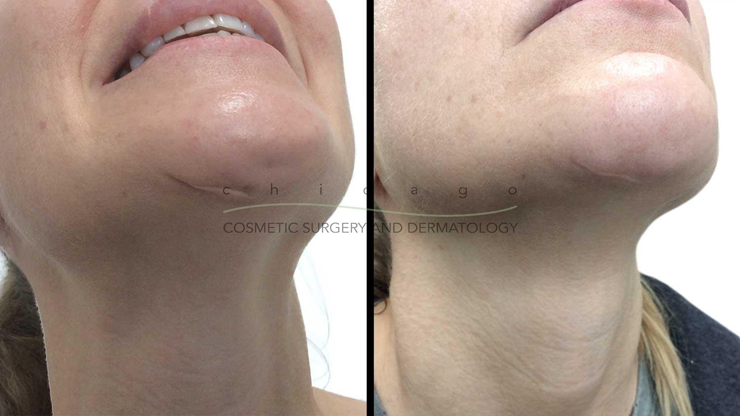 Results of Bellafill injectable filler for scars with Dr. Fine