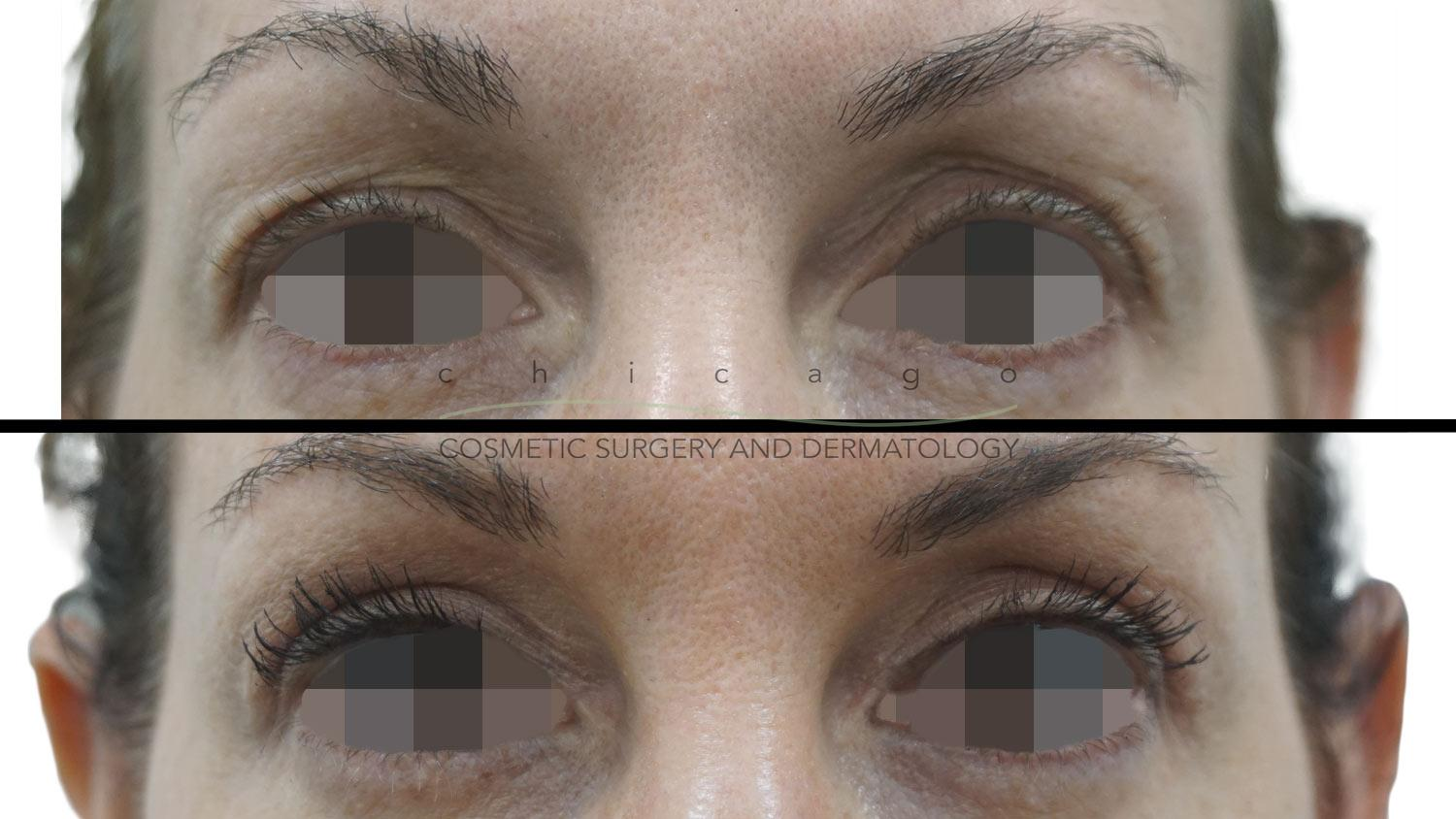 Blepharoplasty with Dr. Niki Christopoulos