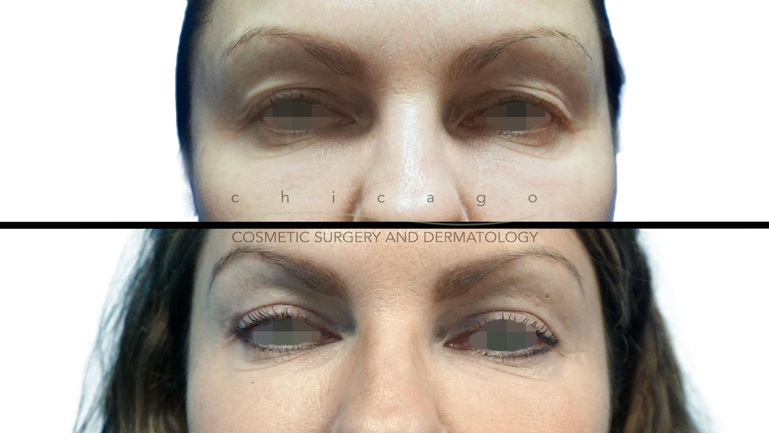 blepharoplasty surgery results