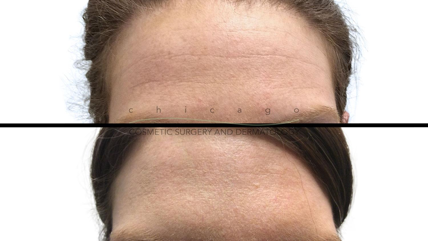 Botox for forehead wrinkles results