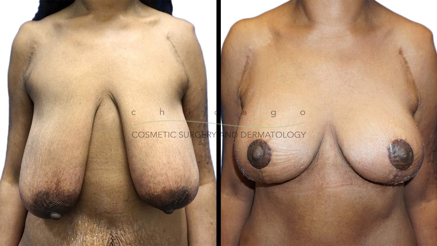 Breast Lift by Dr. Niki Christopoulos
