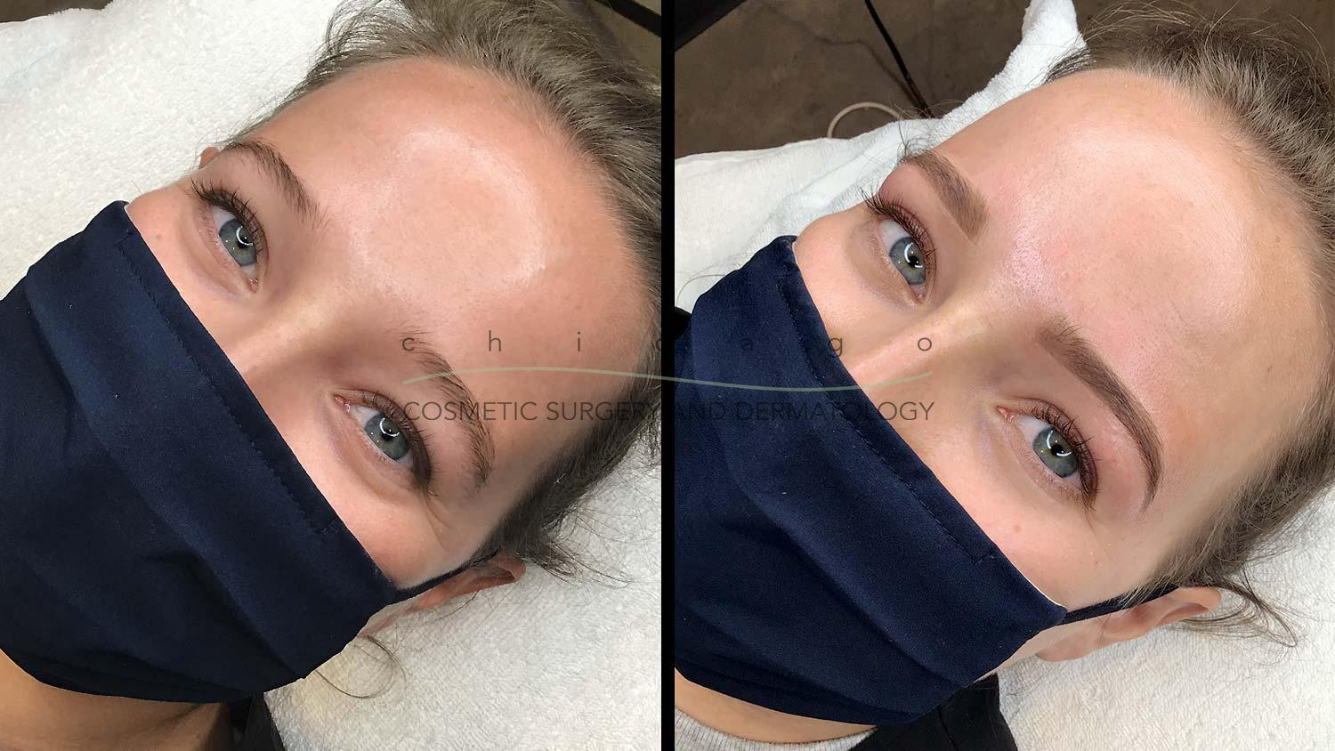 Eyebrow shaping before and after
