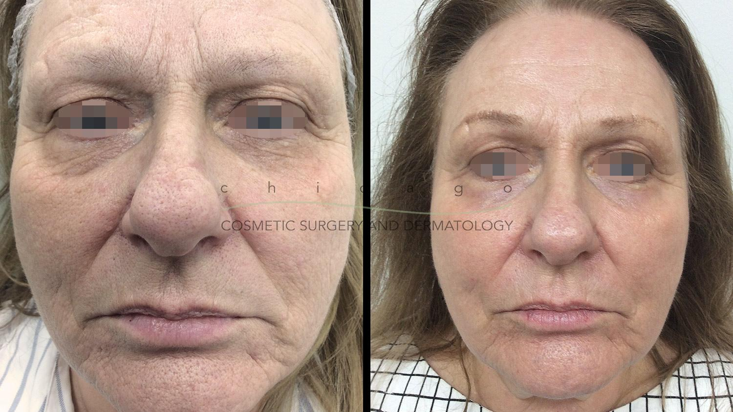 C02 DOT laser resurfacing before and after