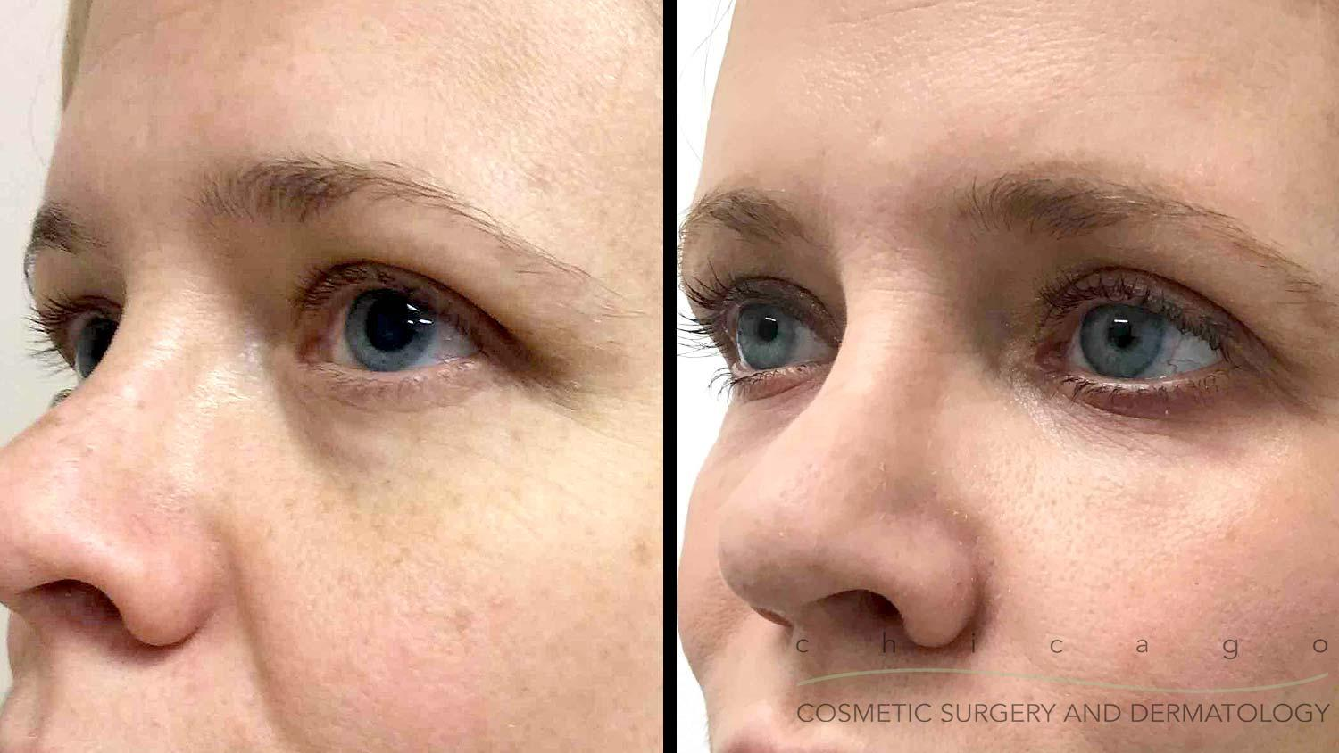 Chicago Madonna Eye Lift before and after