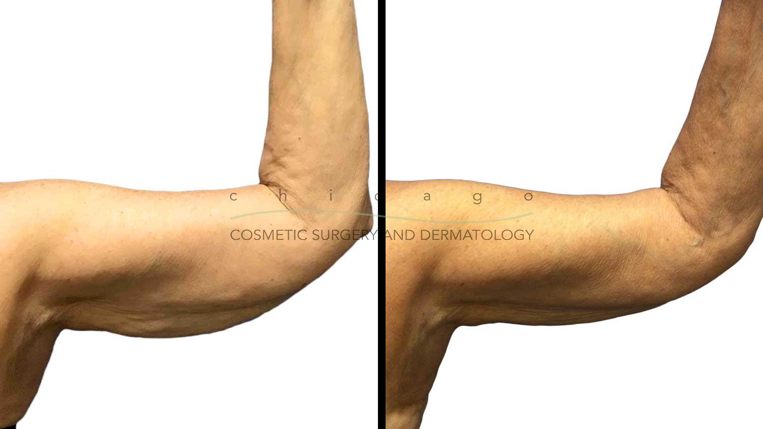 CoolSculpting for arms before and after