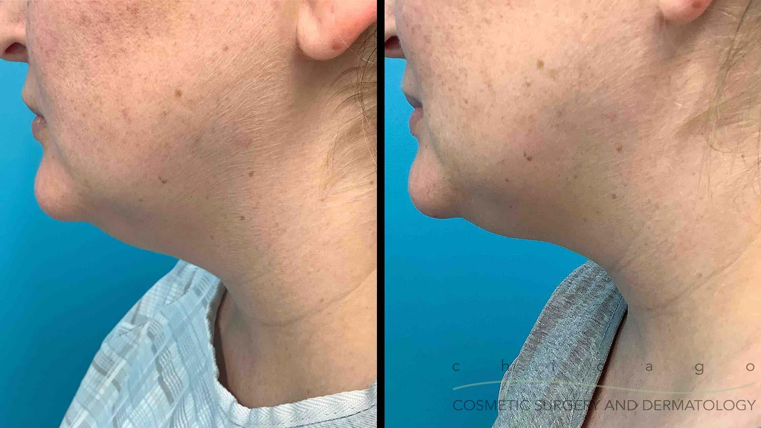 CoolSculpting double chin before and after