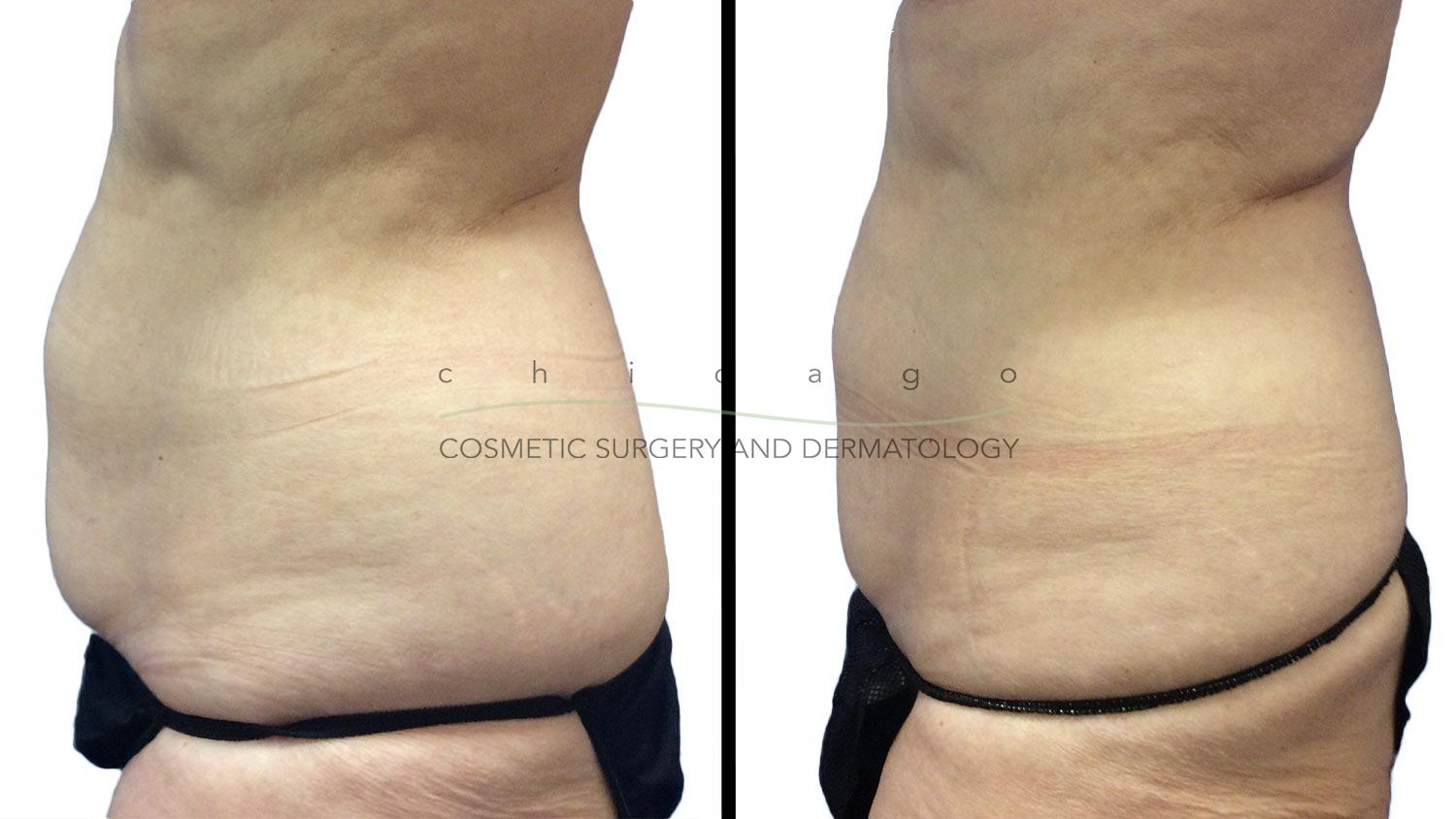 Coolsculpting for Abdomen by Brittany Rank, PA-C