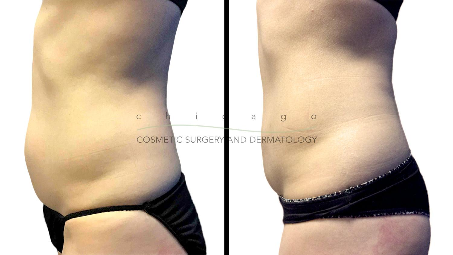 CoolSculpting before and after chicago