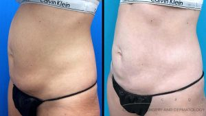 coolsculpting-stomach9