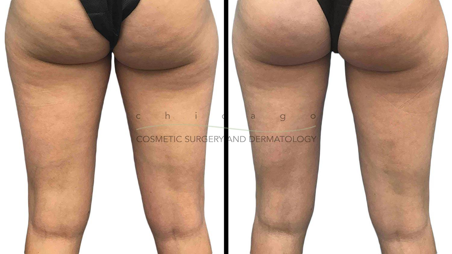 Coolsculpting for Inner Thighs with Brittany Rank, PA-C