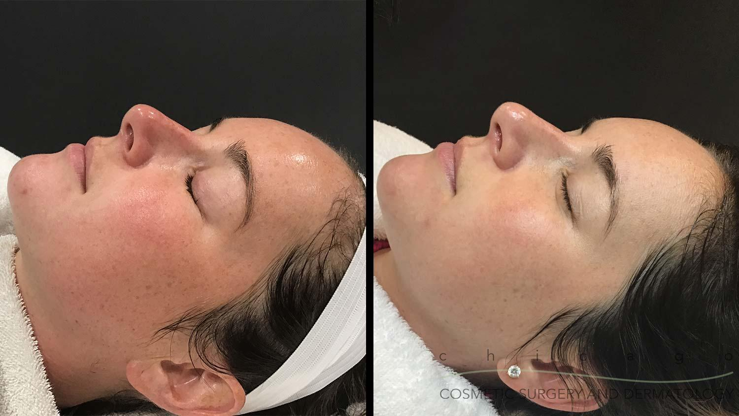 DiamondGlow Microdermabrasion before and after