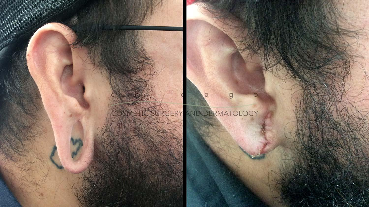 earlobe repair chicago before and after