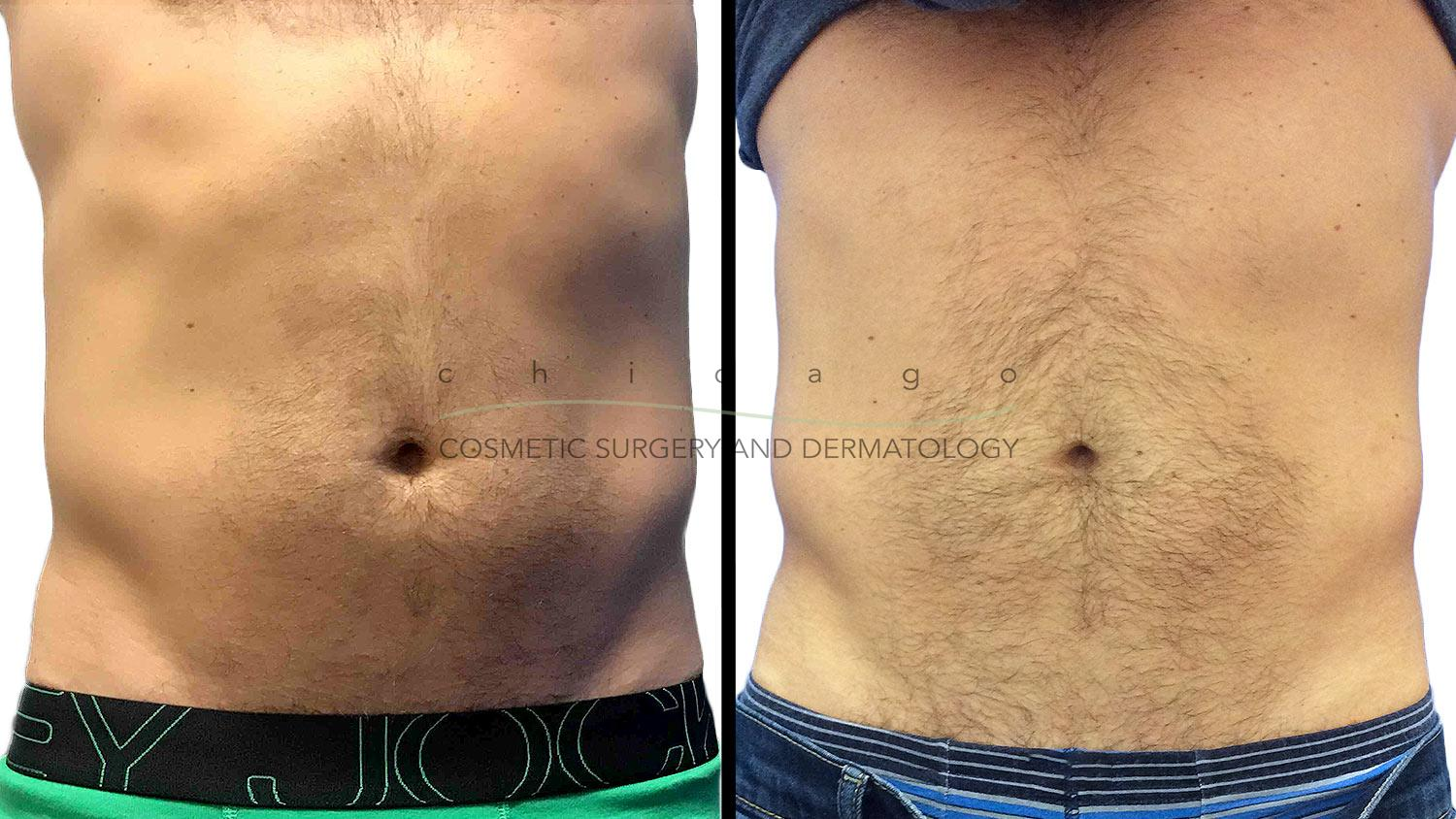 Emsculpt for Abdomen with Whitney Hersh, PA-C