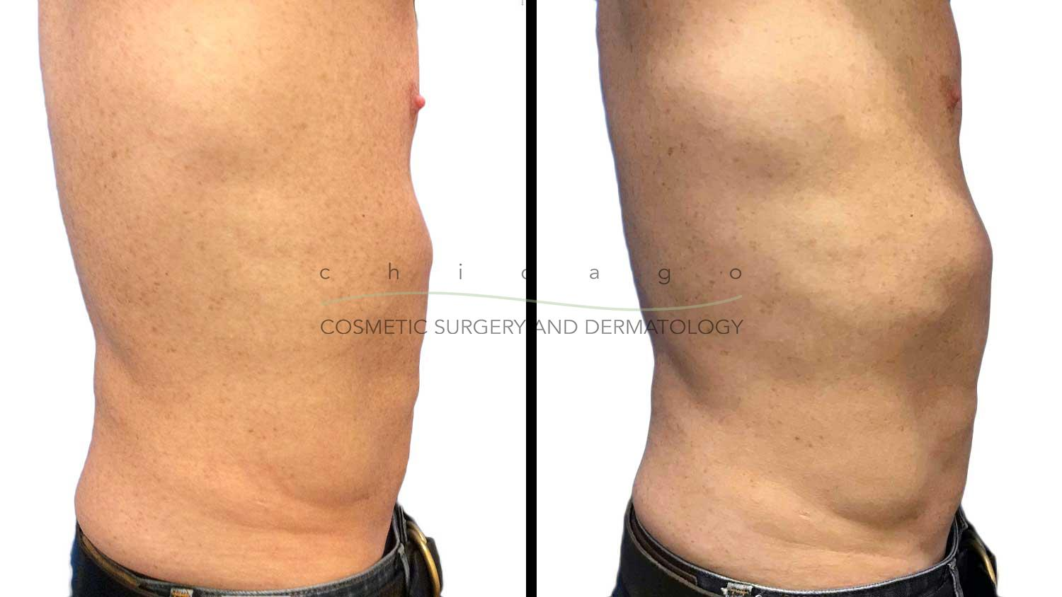 Emsculpt abs before and after