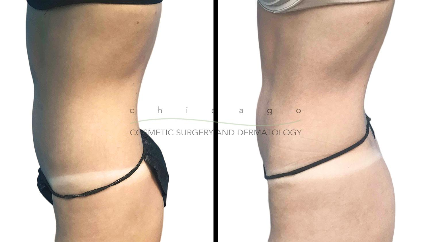Emsculpt abdomen sculpting before and after Chicago