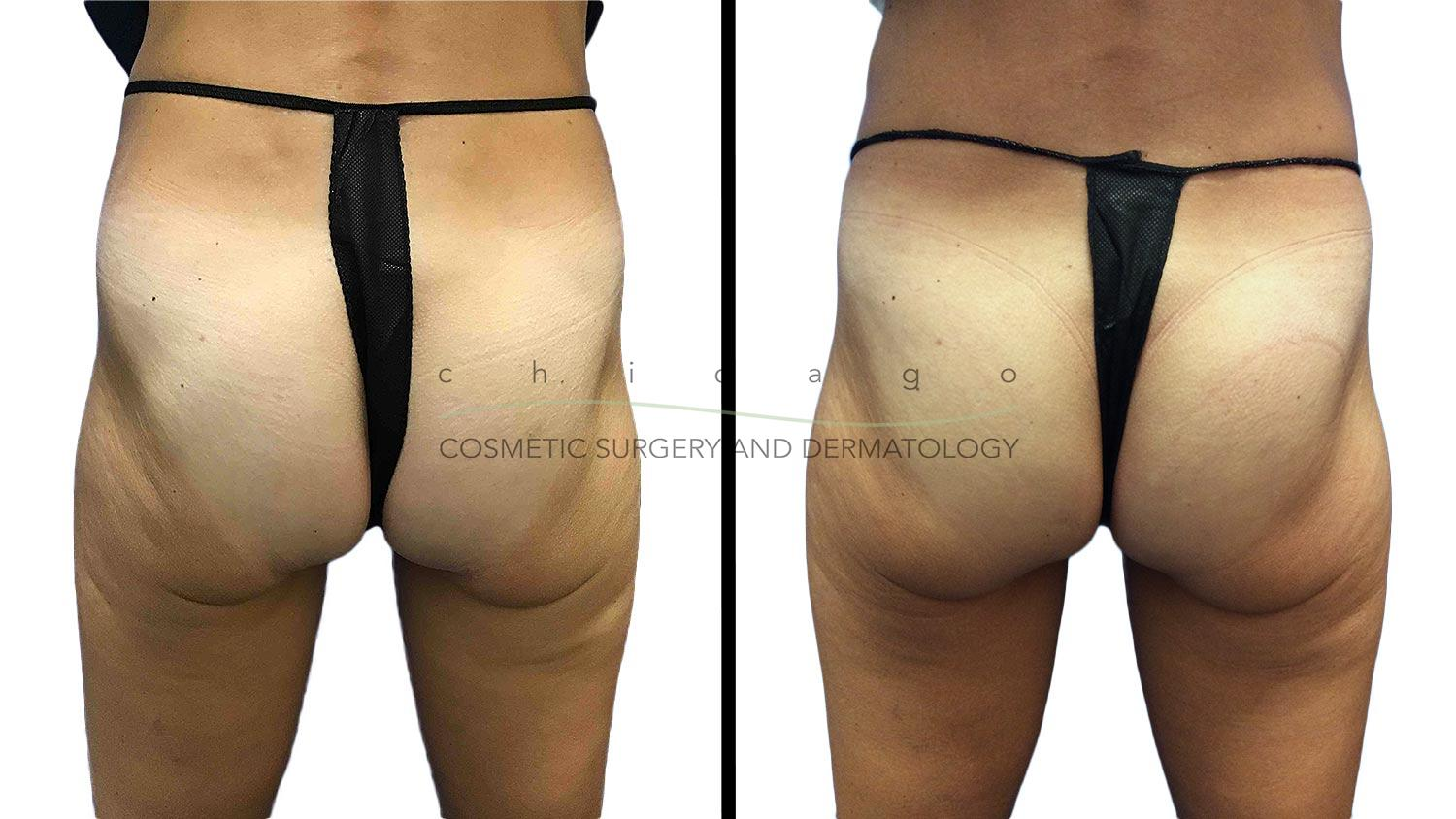 Emsculpt for buttocks with Brittany Rank, PA-C