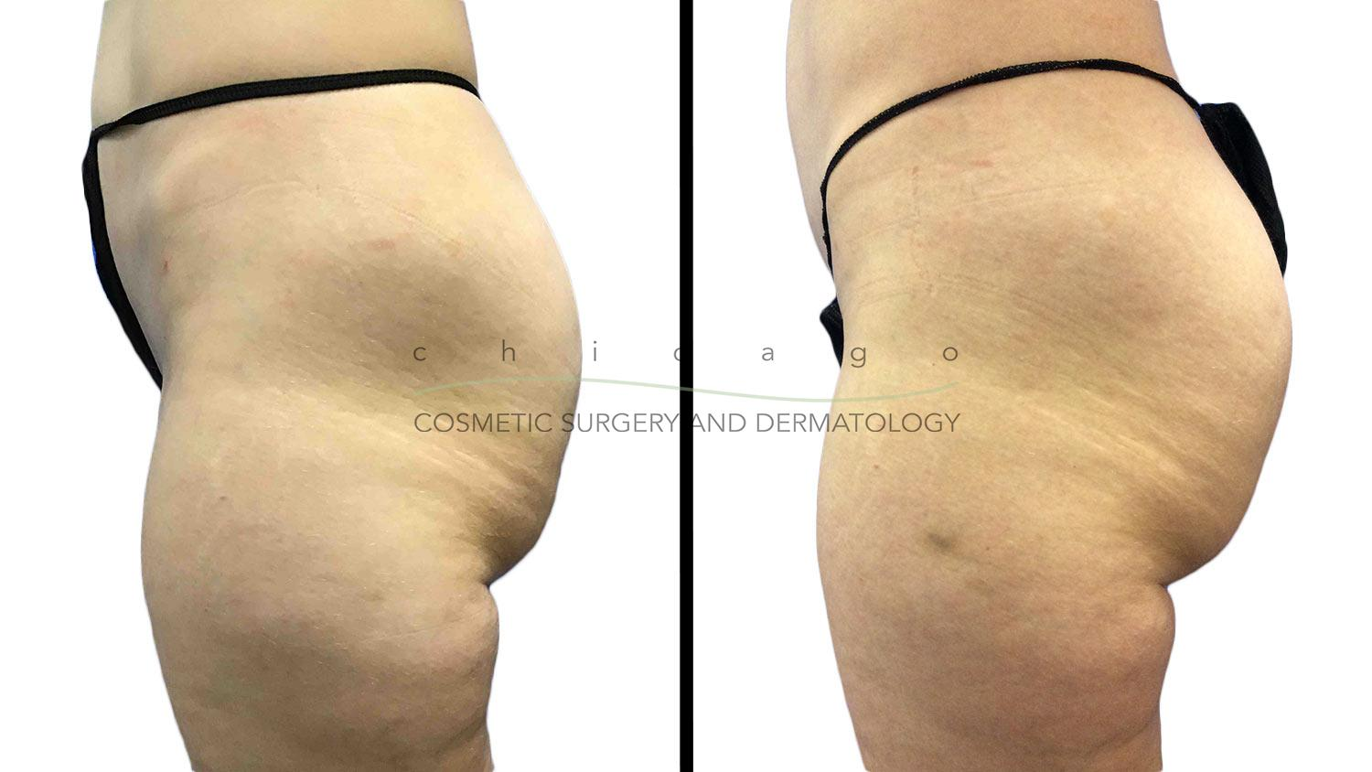 Emsculpt - Chicago Cosmetic Surgery and Dermatology