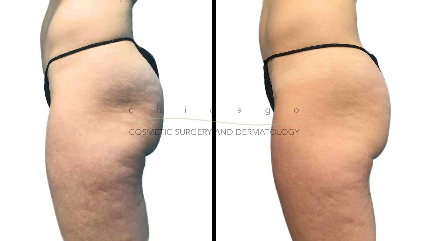 Emsculpt buttocks before and after