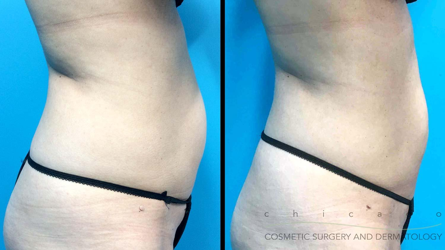 Chicago EmSculpt NEO before and after