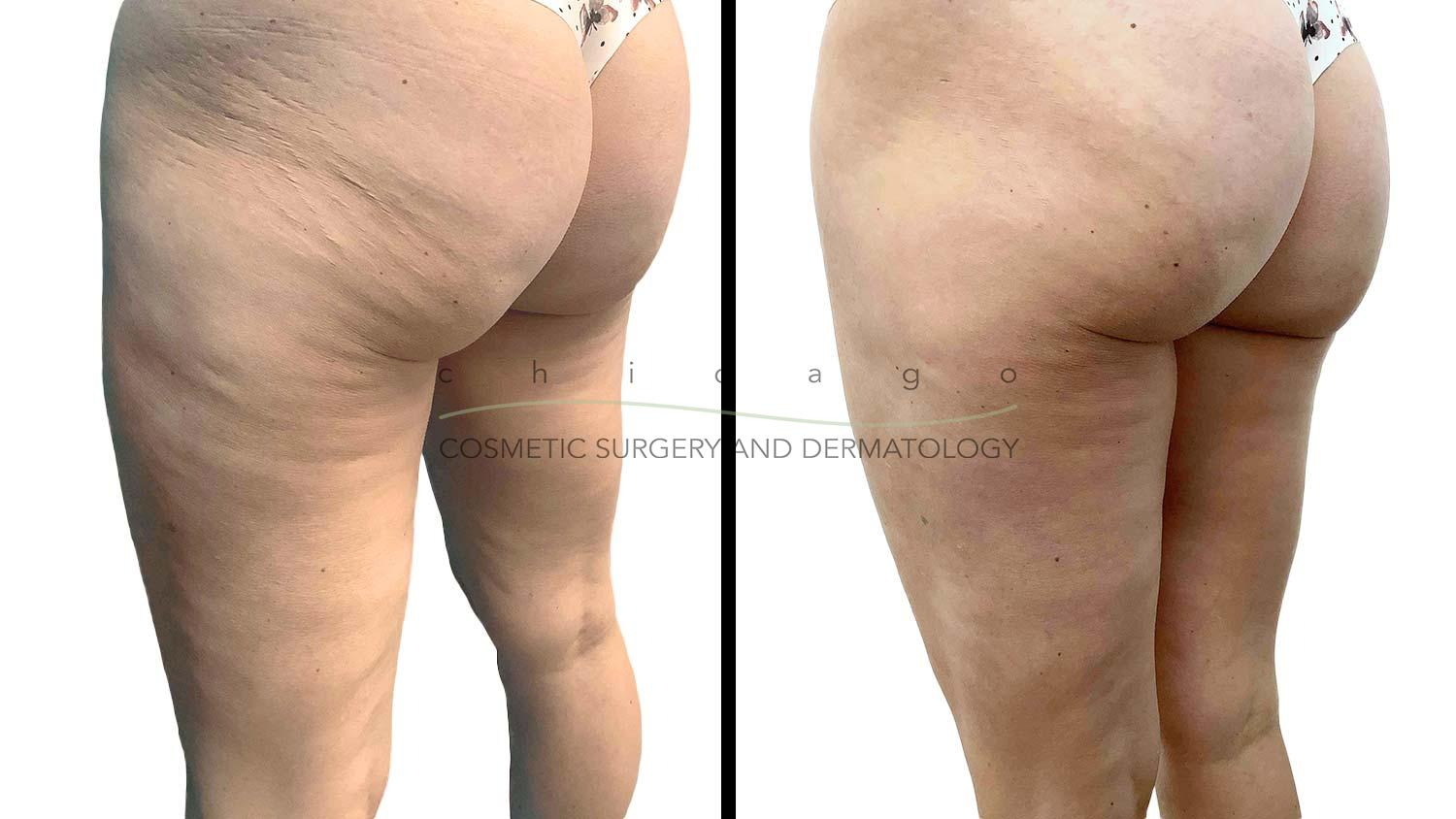 Emtone cellulite before and after