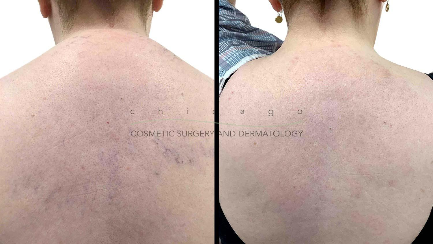 ExcelV laser before and after