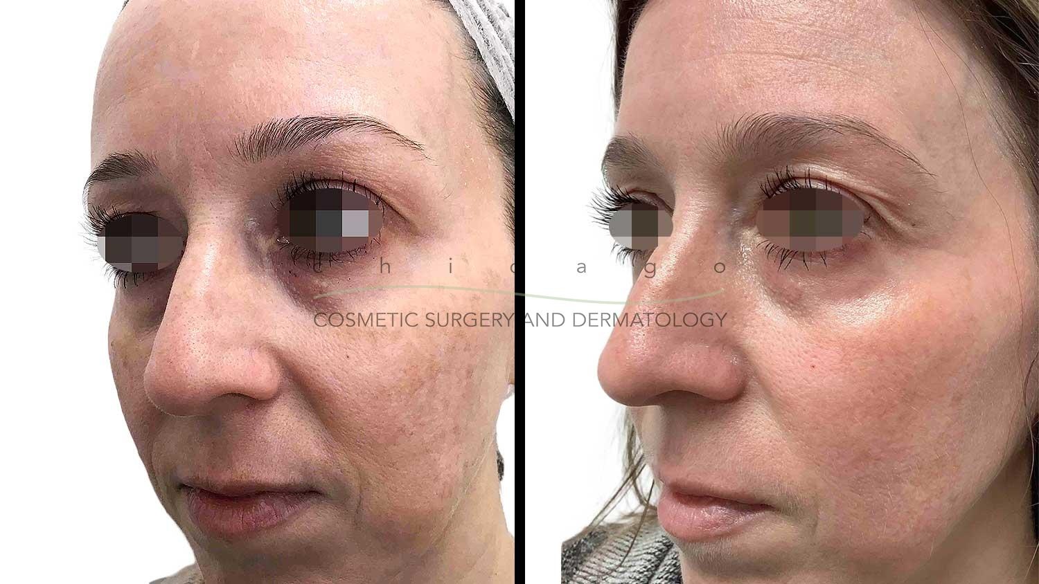 Fraxel Dual before and after melasma