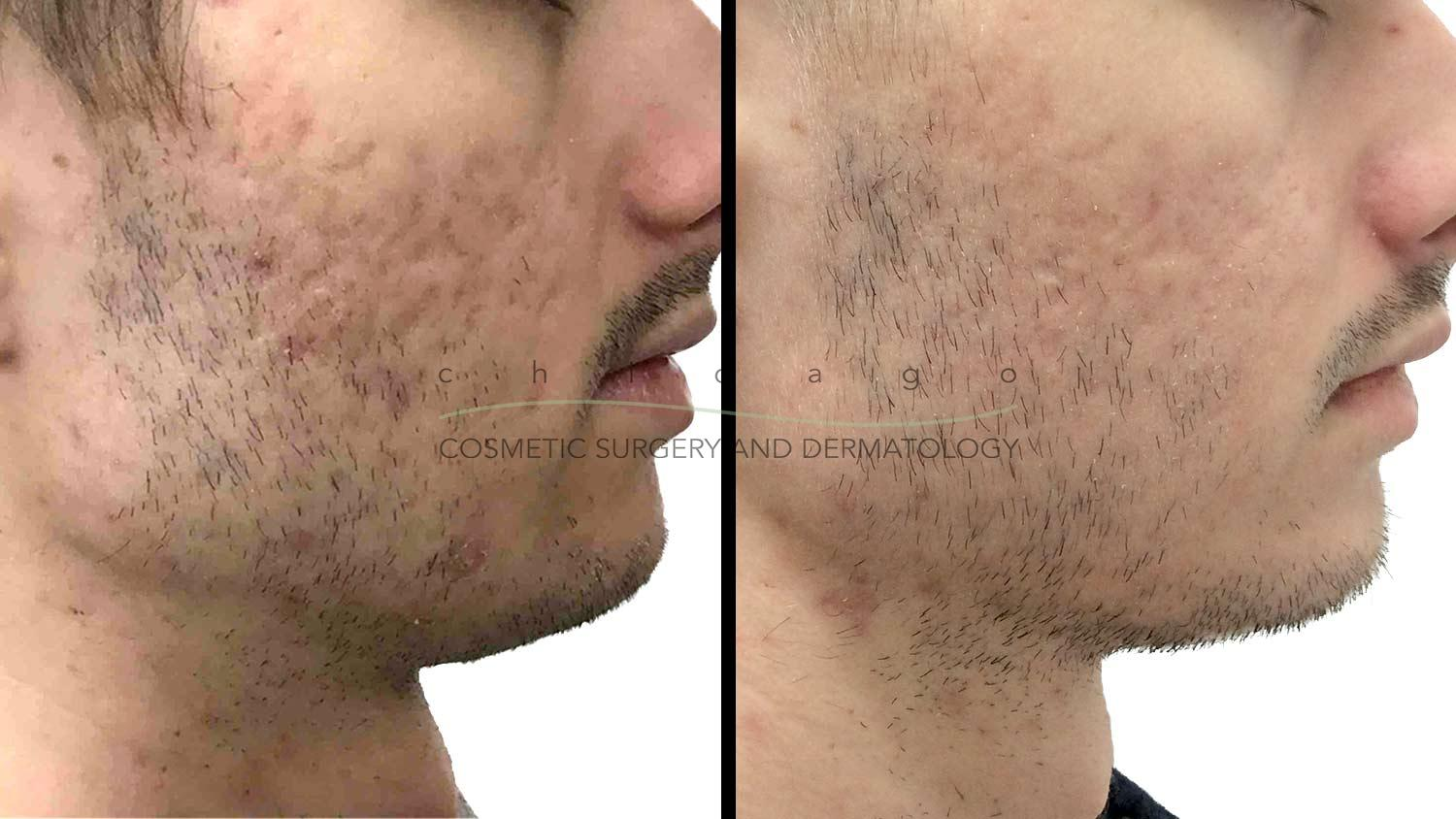 fraxel laser resurfacing before and after