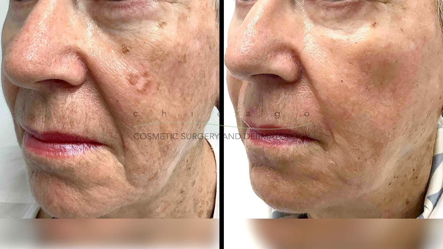 Fraxel DUAL laser before and after