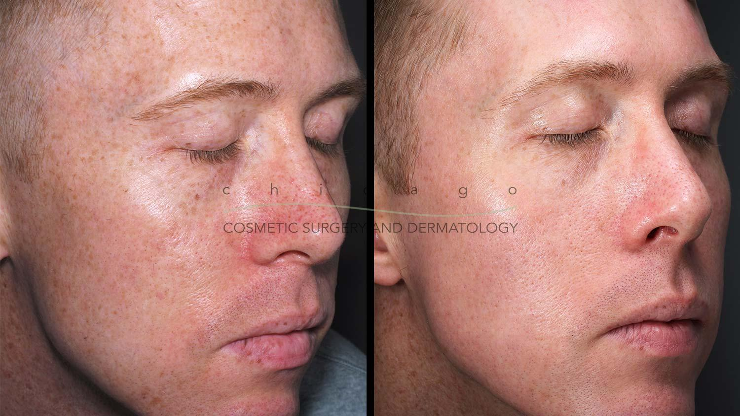 Fraxel Dual laser resurfacing before and after