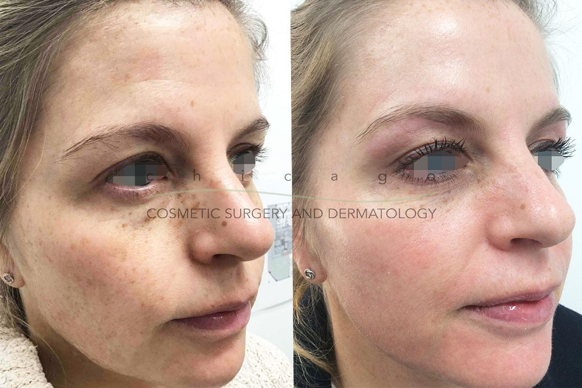 Fraxel Dual with Carolyn Jacob, MD