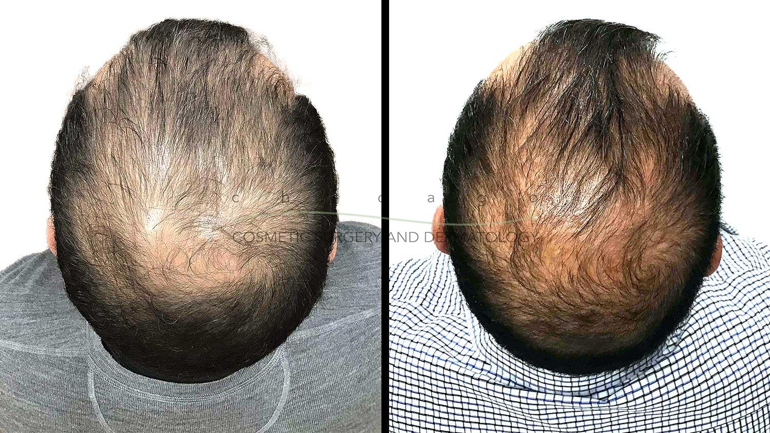 PRP for Hair Loss with Dr. Omer Ibrahim