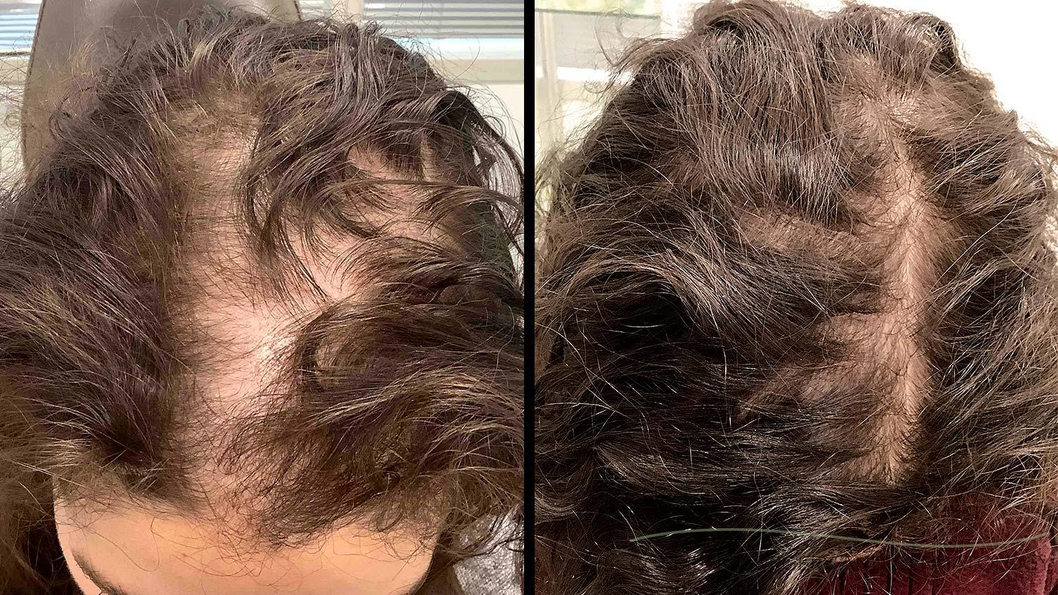 Alopecia hair loss before and after