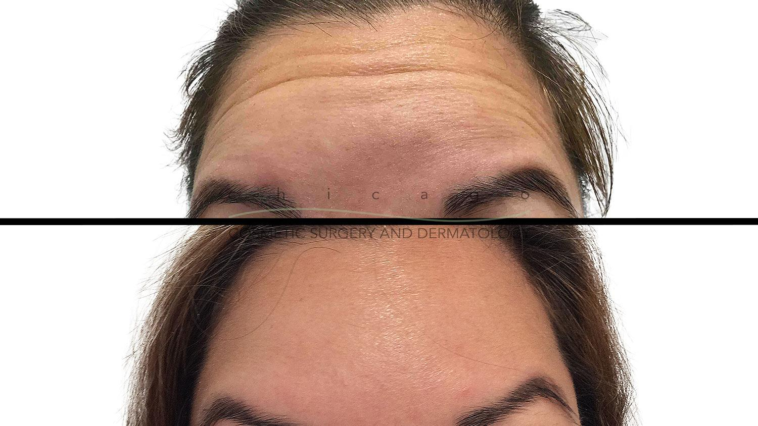 Jeuveau for Forehead Wrinkles results