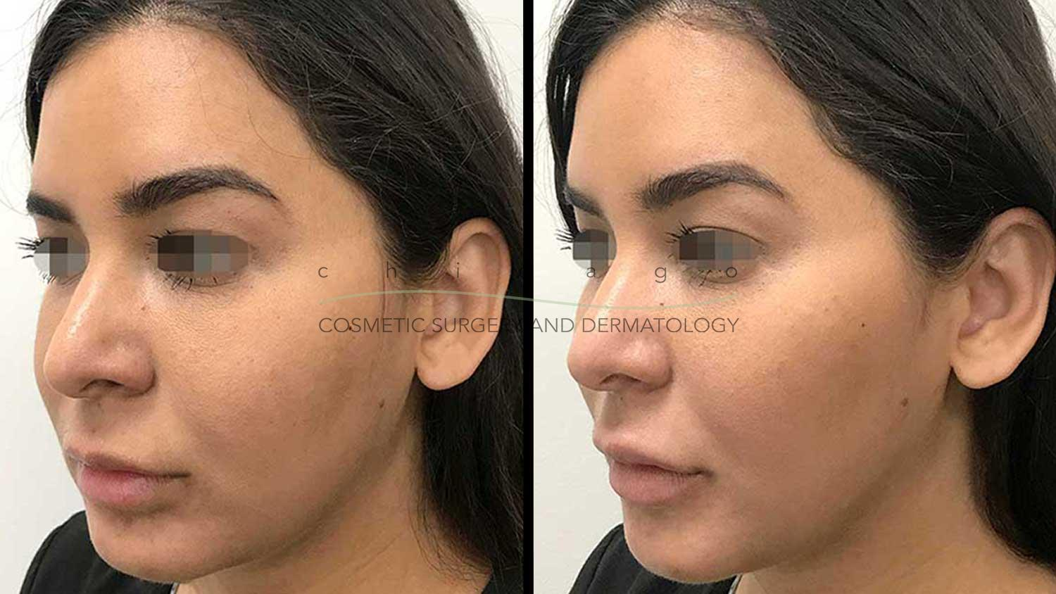 Juvederm lip and cheek enhancement
