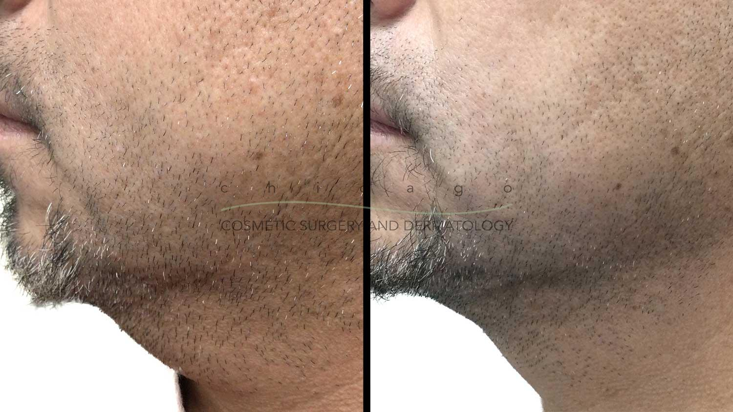 Kybella by Dr. Omer Ibrahim
