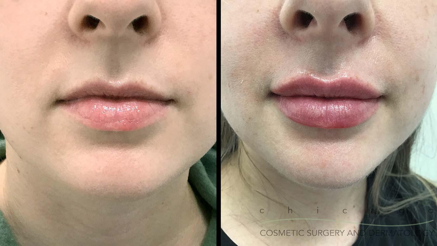 Restylane Kysse lip filler before and after