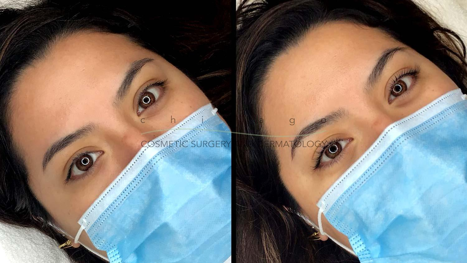 lash lift and tint before and after