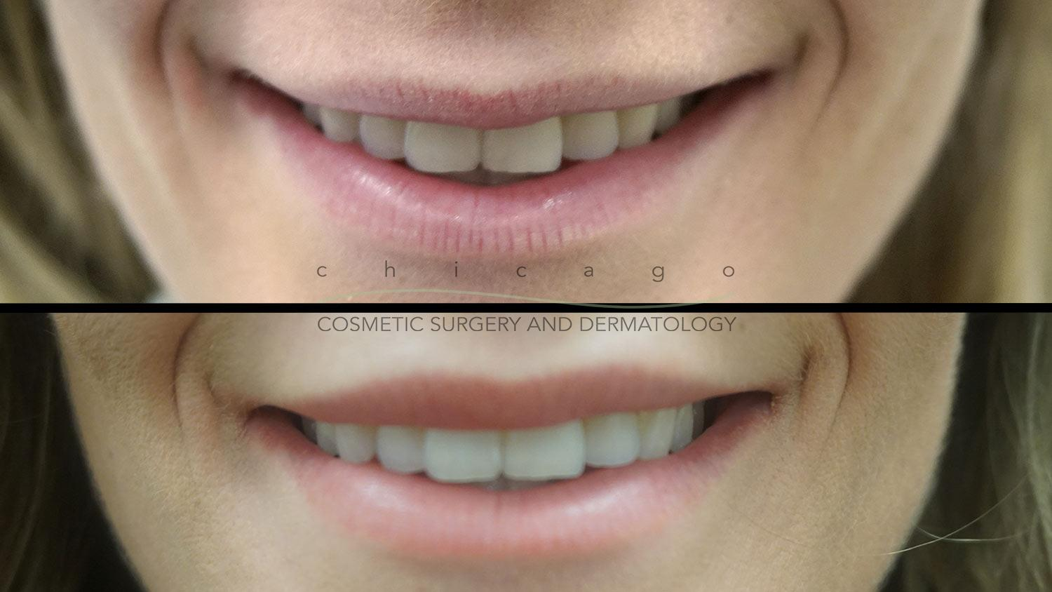 Lip Lift by Dr. Niki Christopoulos
