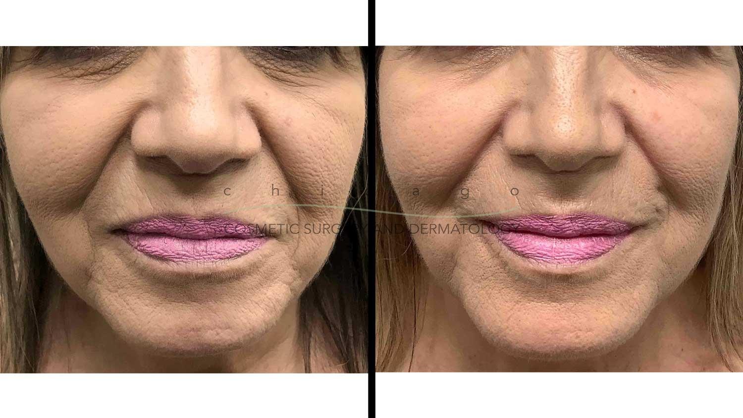 facial rejuvenation from injectable fillers with Dr. Pritzker