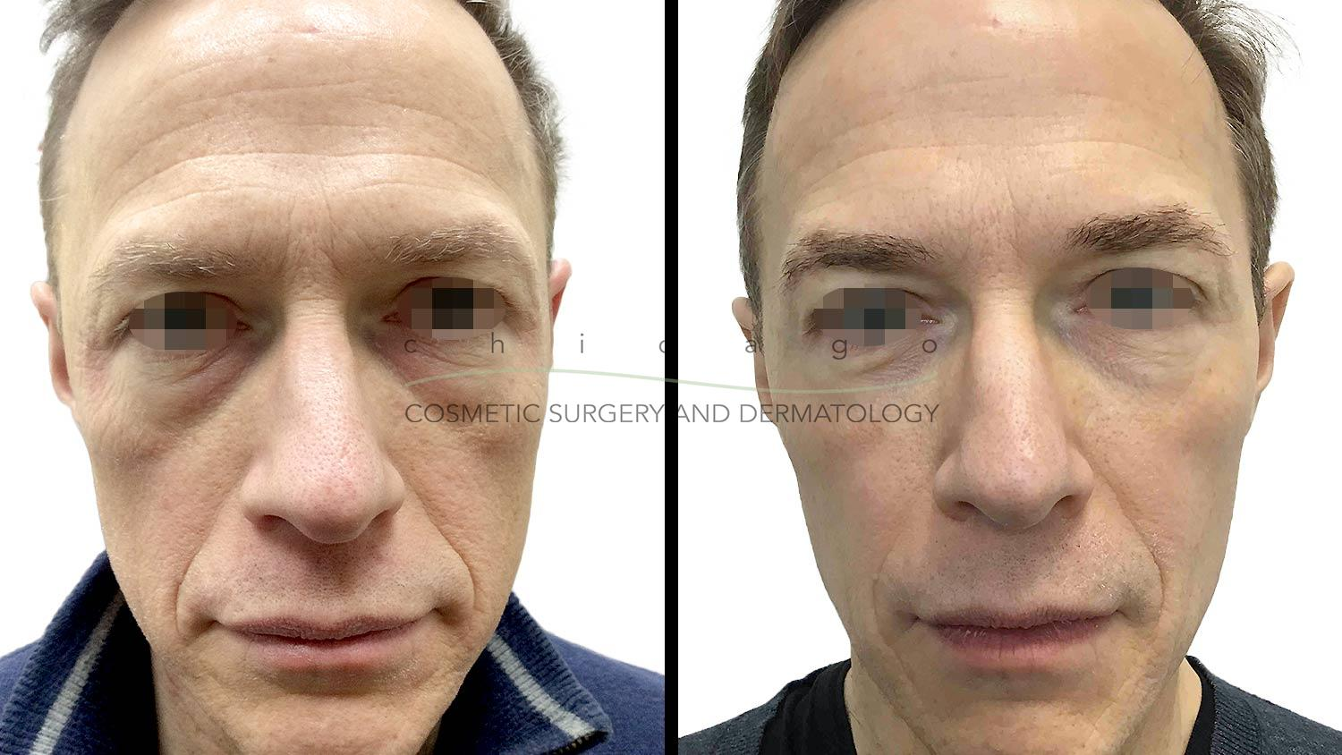 injectable filler before and after