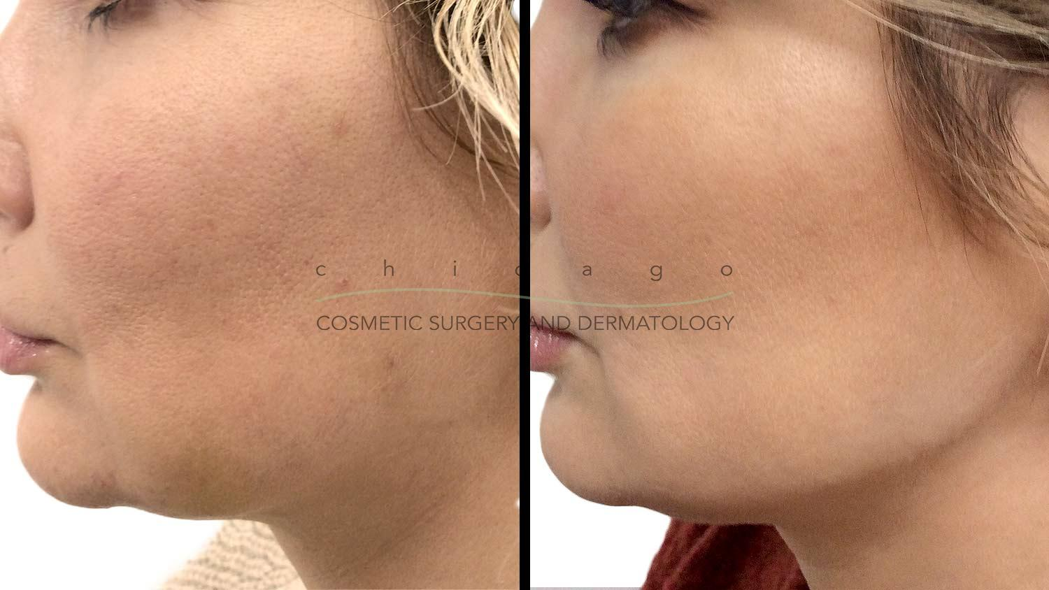 Restylane Lyft filler injectable before and after