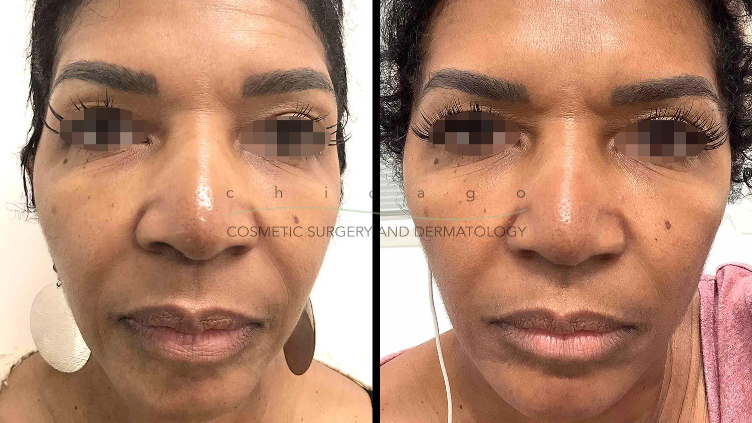 Restylane Lyft before and after