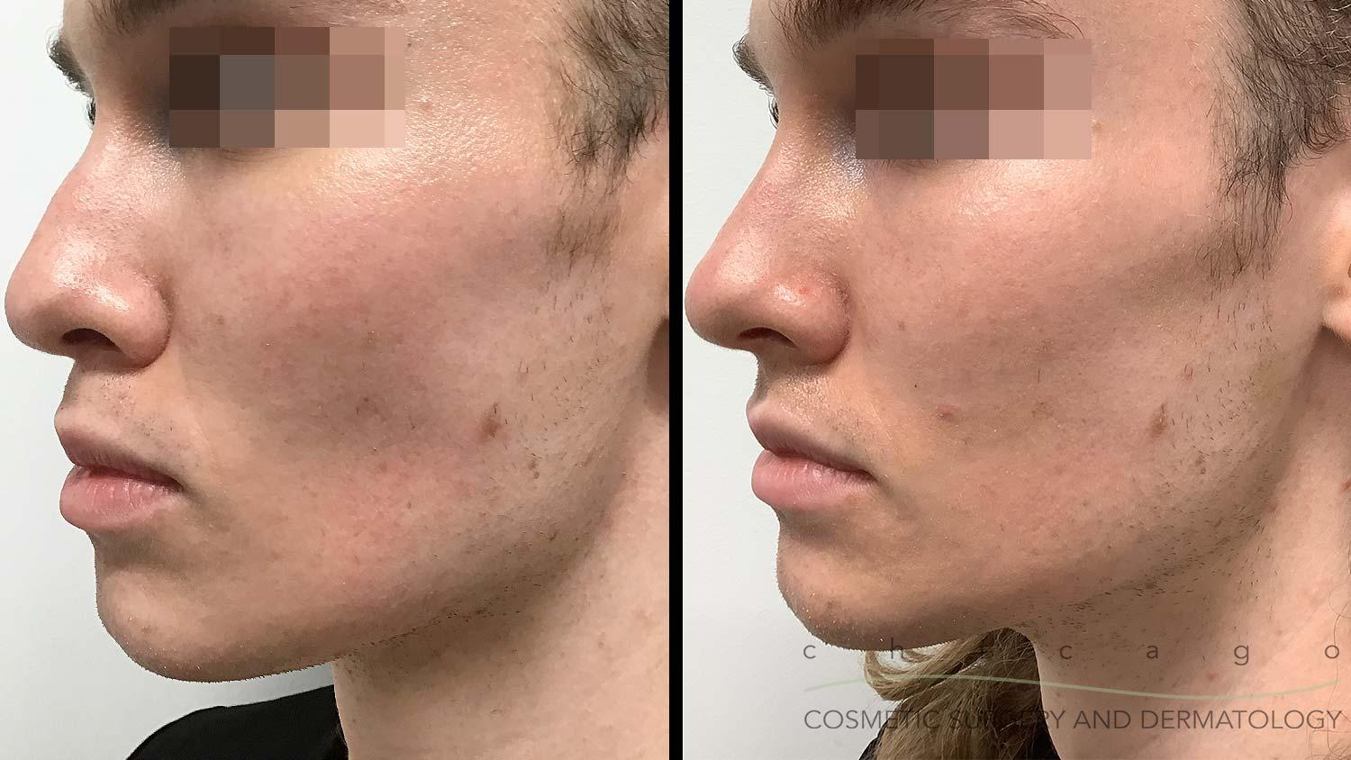 Restylane Lyft filler before and after Chicago