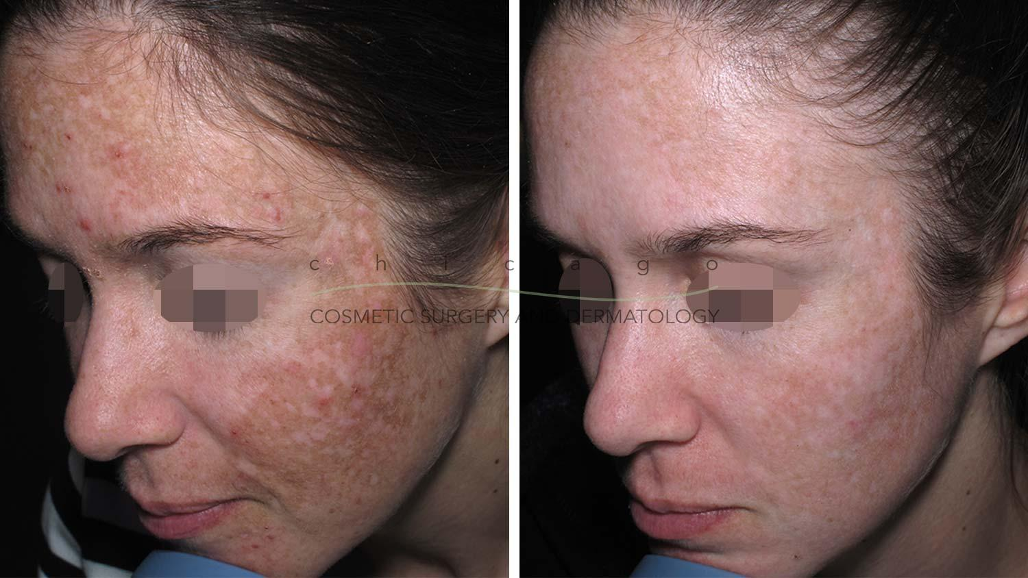 Fraxel laser melasma before and after