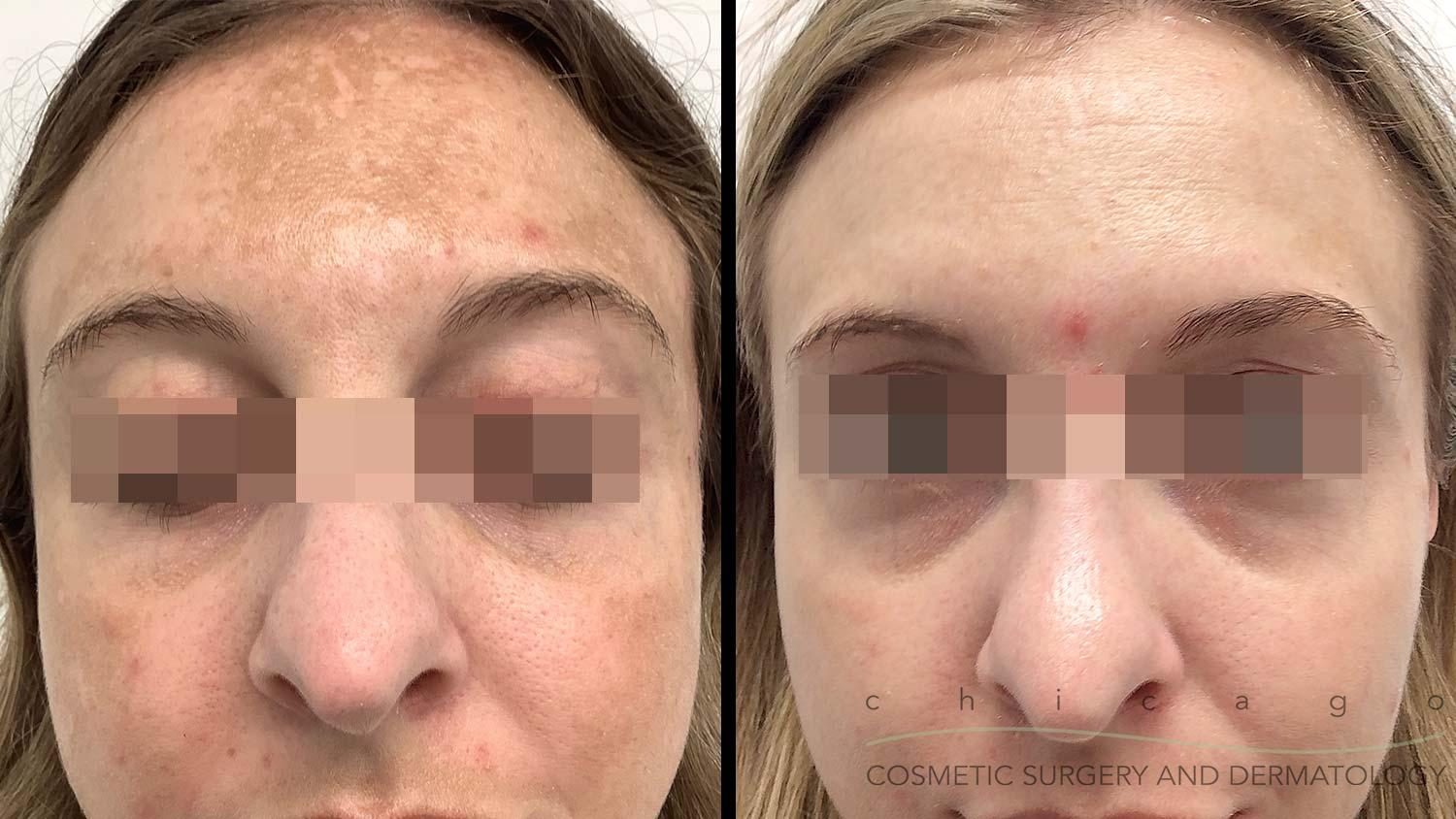 Melasma before and after Chicago