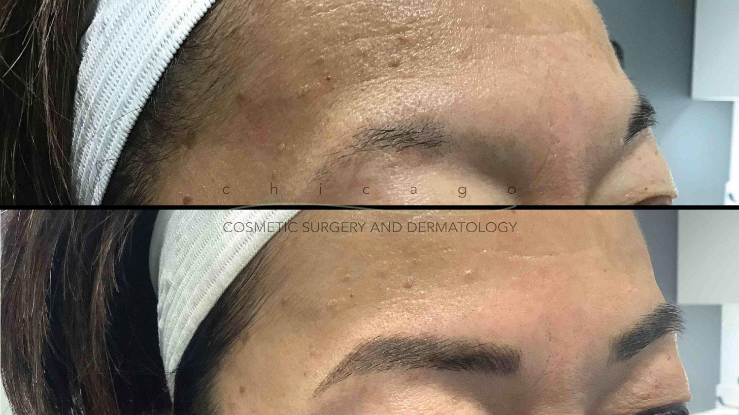 Microblading with Lizz